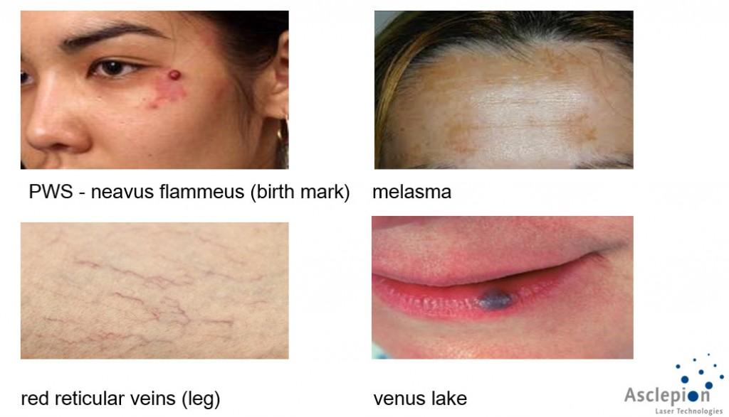 Contoh permasalahan yang bisa diterapi dengan laser ini. Tanda lahir merah, flek, pembuluh darah yang tampak pada kulit tipis, tumor pembuluh darah