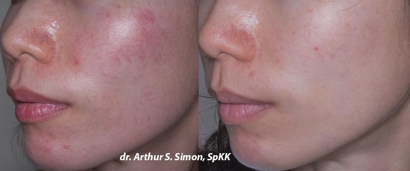 Laser Diode Yellow untuk menghilangkan pembuluh darah di wajah, maupun kemerahan akibatnya
