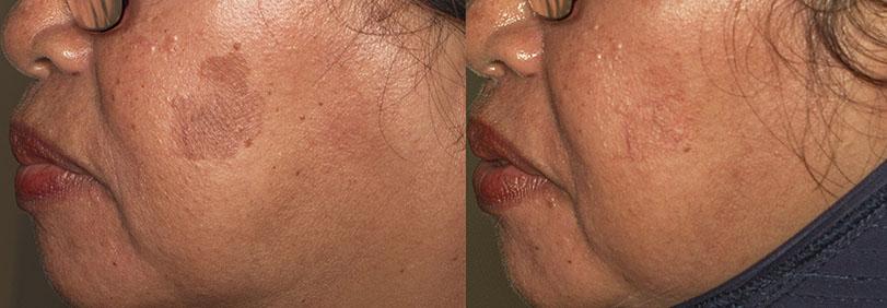 Foto sebelum, dan sesudah 1 sesi laser