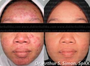 Jerawat: sebelum dan sesudah pengobatan dg dr. Arthur S. Simon, SpKK