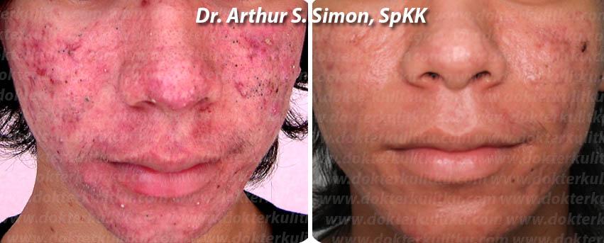 Sebelum dan sesudah pengobatan Jerawat selama 2 bulan oleh dr. Arthur, SpKK - Balikpapan
