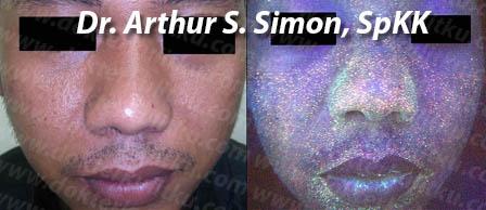 Pemeriksaan wajah di tempat dr.Arthur, SpKK. Komedo pasien ini banyak sekali. kandidat yang baik untuk di facial