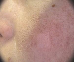 Pembuluh darah seperti jala di wajah, tampak daerah di tengah pipi yang sudah di terapi. Foto diambil sesaat segera sesudah terapi