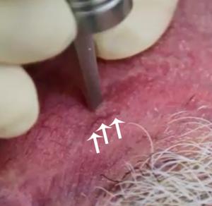 Keterangan video: pembuluh darah yang diobati adalah yang sekitar 1cm dari batang penuntun laser nya, untuk lebih jelasnya bisa dilihat di foto ini, yg diobati yg pembuluh darah yg saya tandai dengan panah