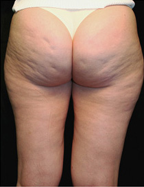 Cellulite Before